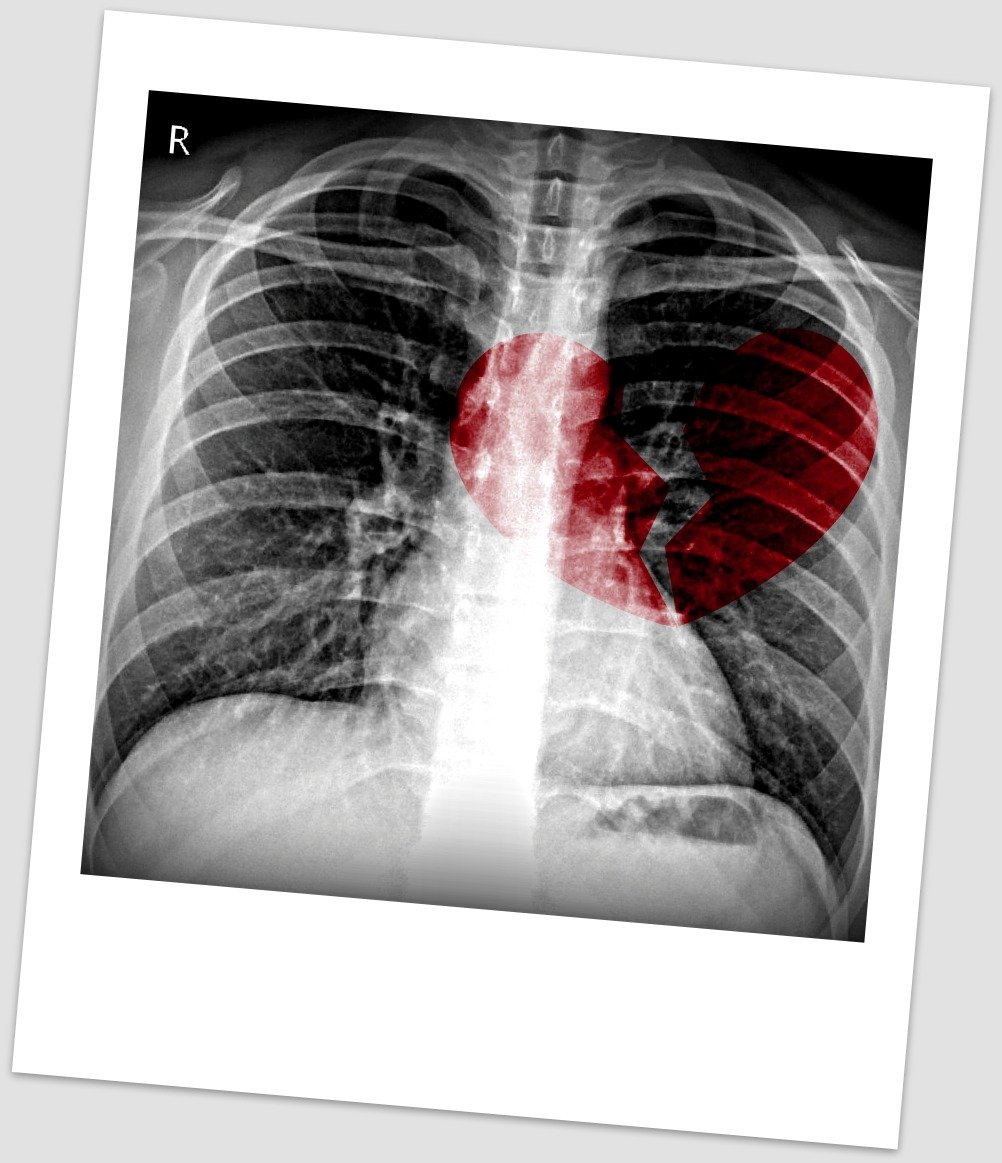 """""""Radiology Picture of the Day"""""""