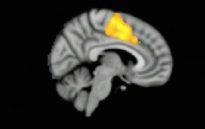 mri-brain-scan-apathy.jpg