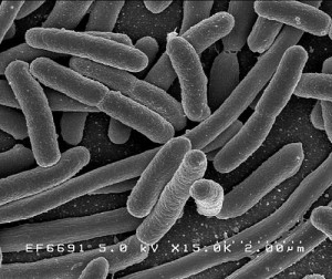 https://en.wikipedia.org/wiki/Escherichia_coli#/media/File:EscherichiaColi_NIAID.jpg