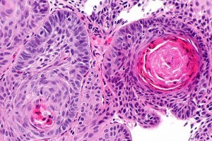 Esophageal_squamous_cell_carcinoma_-_a1_--_high_mag