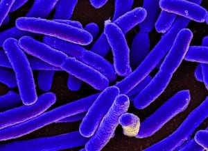 https://commons.wikimedia.org/wiki/File:E._coli_Bacteria_(16578744517).jpg